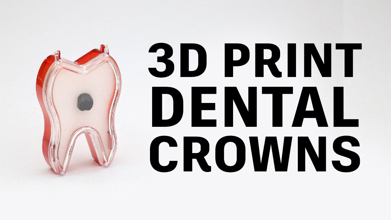 How To 3d Print Pfm Dental Crowns    Glidewell Laboratories